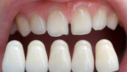 What are the dental bridges?