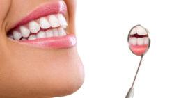 14 faktów na temat ortodoncji dla dorosłych